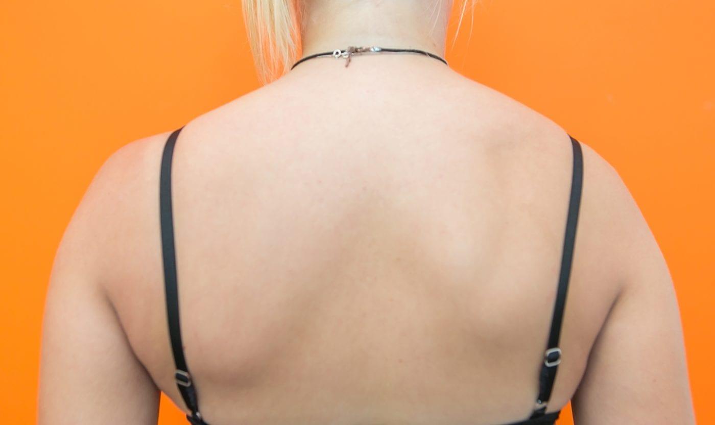 mijnfysiosportief-oefeningen-bovenrug